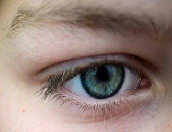 Dilempar Telur Busuk Saat Ultah, Remaja Ini Kehilangan Penglihatan Mata Kirinya